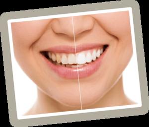 The Best Teeth Whitener Laser Teeth Whitening Vs At Home